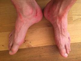 des pieds bien abimés...